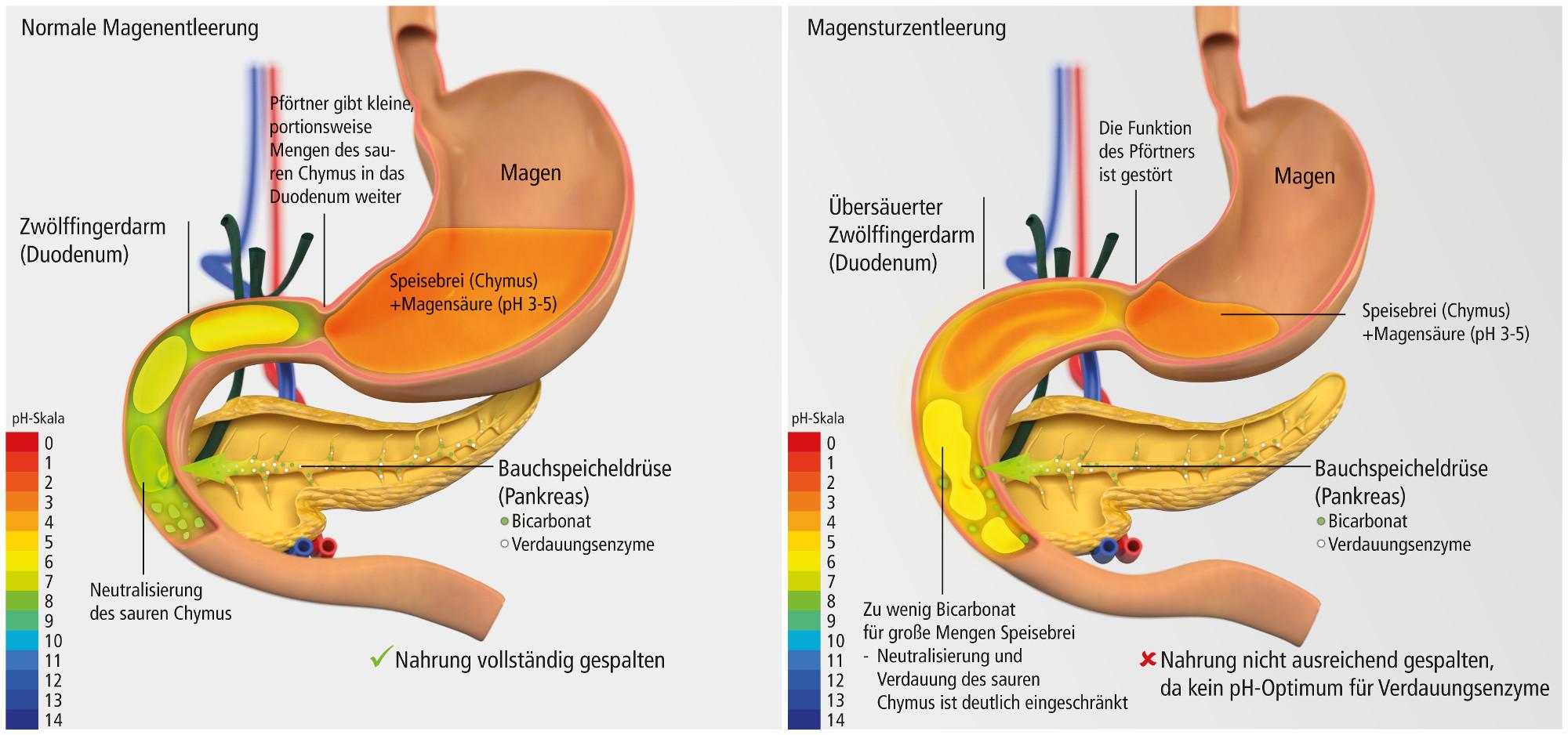 Charmant Duodenum Funktion Fotos - Menschliche Anatomie Bilder ...