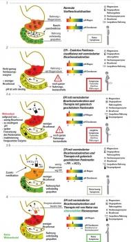 Abb. 2: Verdauungssituation bei EPI mit verminderter Bicarbonatsekretion und diverse Therapieansätzen