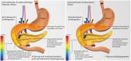 Abb. 2: Enzymsubstitution bei Sturzentleerung des Mageninhaltes: Pankreatin-Pellets vs. Rizoenzym-Pulver im Vergleich