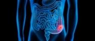 Die Dickdarmspiegelung gibt Aufschluss über Veränderungen an der Dickdarmschleimhaut wie beispielsweise Darmpolypen. Ein gründlich entleerter Darm ist eine zentrale Voraussetzung für eine aussagekräftige Spiegelung. Quelle: © psdesign1/Fotolia.