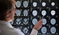 Anhand von Magnetresonanz-Tomographie-Aufnahmen fanden US-Wissenschaftler heraus, dass das Gehirn bei Menschen mit unbehandeltem Hörverlust schneller schrumpft als bei Personen mit normalem Gehör. Foto: audibene, iStock / stanley45