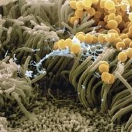 Jährlich treten in Deutschland rund 225.000 postoperative Wundinfektionen auf. Zwischen 7.500 und 15.000 Patienten sterben nach Schätzungen des Robert Koch-Instituts (RKI) pro Jahr an einer Sepsis nach Wundinfektion - der dritthäufigsten Todesursache in Deutschland. Die Normothermie eines Patienten, also die Vermeidung eines Temperaturabfalls während und nach einer OP, zählt zu den wichtigsten Maßnahmen zur Vermeidung von Infektionen nach einer Operation. (im Bild: Der methicillinresistente Staphylococcus aureus (MRSA) ist ein weit verbreiteter Keim, der auf der Haut sowie den Schleimhäuten der oberen Atemwege siedelt)