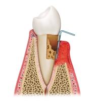 Fortgeschrittene Parodontitis