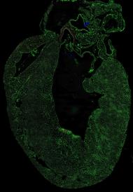 Schnitt durch das Herz einer Maus. Die Gefäße sind grün dargestellt. © Iris Moll, DKFZ