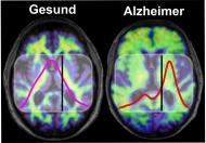 Im Gehirn von Menschen mit Alzheimer-Demenz kommt es zu krankhaften Ablagerungen des Proteins Amyloid-Beta, die mit bildgebenden Verfahren wie Amyloid-PET sichtbar gemacht werden können (rechts). Gesunde und krankhaft gefaltete Amyloid-Beta-Proteine absorbieren Infrarotlicht unterschiedlich. Bei Alzheimer-Patienten kommt es im Vergleich zu Gesunden zu einer Frequenzverschiebung unterhalb des Schwellenwerts, die der Bluttest nachweist. © K. Gerwert, A. Nabers/RUB