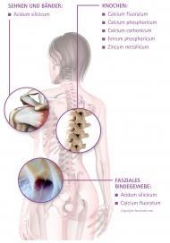 Skelett mit Angriffspunkten