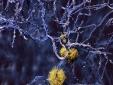Plaques: Bei der Alzheimer-Erkrankung lagern sich Eiweiße zwischen den Nervenzellen im Gehirn ab. (Quelle: Shutterstock/Juan Gaertner)