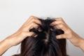 Zur Behandlung von Haar- und Kopfhautproblemen stehen vielfältige Produkte der Selbstmedikation zur Verfügung. (Quelle: Shutterstock/suriya yapin)